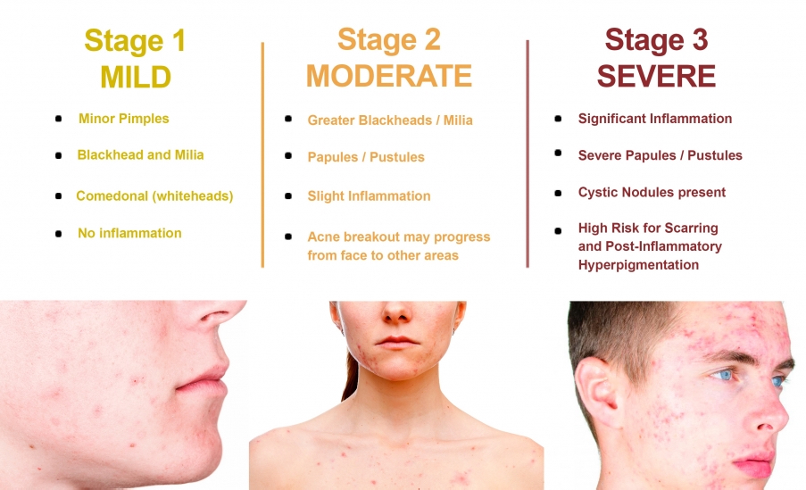 saw palmetto acne