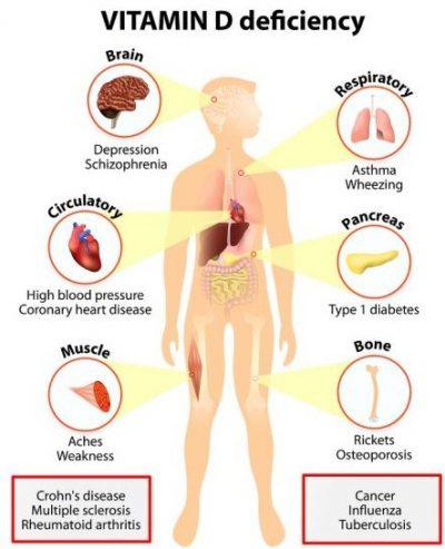 vitamin d3 deficiencies