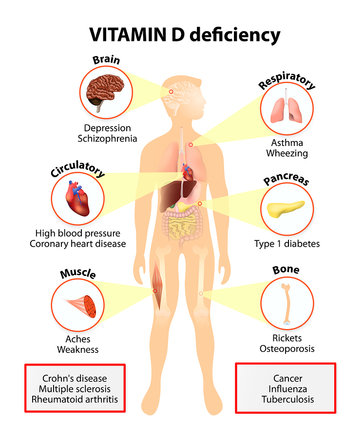 vitamin d3 deficiencies