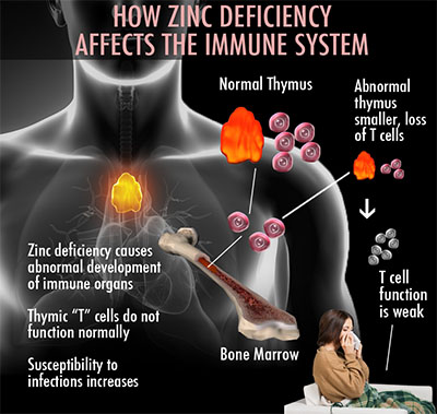 Zinc Good for Colds